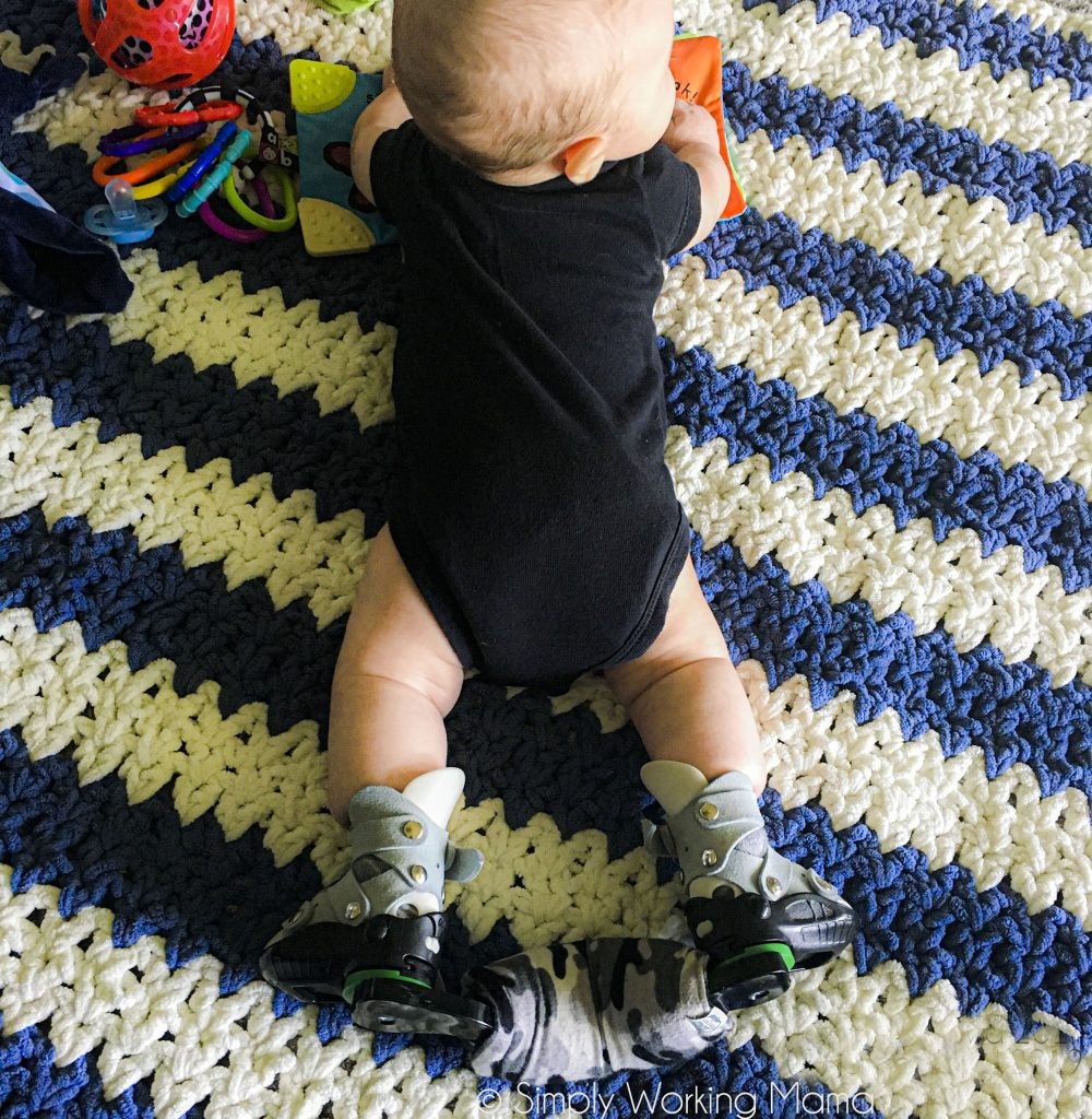 baby boy with dobbs bar for clubfoot treatment